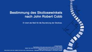 skoliose-cobb